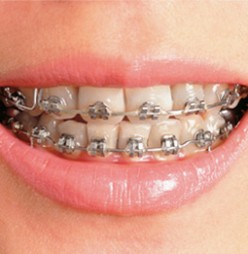 Dental Braces - Through the years