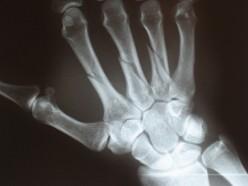 Why bones make a cracking sound?