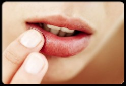 How Long Does A Cold Sore Take To Heal?