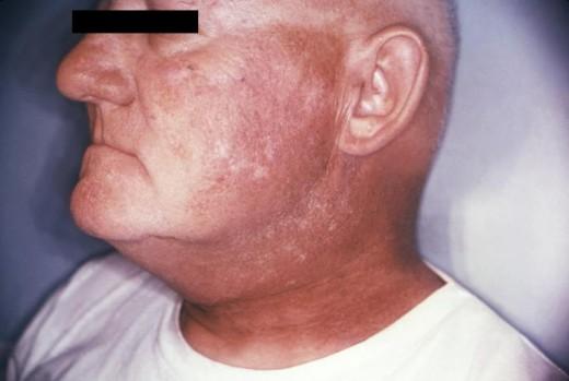 Radiation Dermatitis