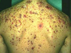 Acne on Back: Causes, Prevention, Remedies and Treatments