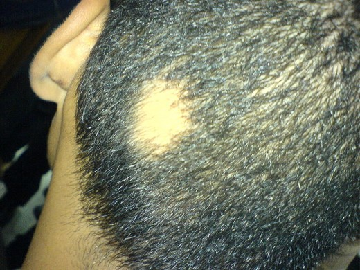 Allopecia areata is easily distinguishable due to its patchy (and occasionally total) hair loss.