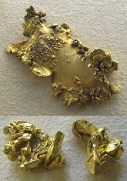 Gold salts and their long term effects in the treatment of Rheumatoid Arthritis