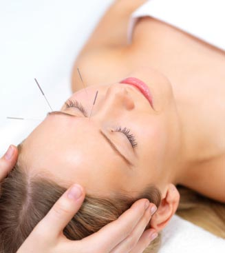 Several trials indicate that Migraine Patients Benefit from Acupuncture (Acupuncture)