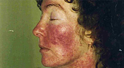 UV radiation rash caused by CFL exposure