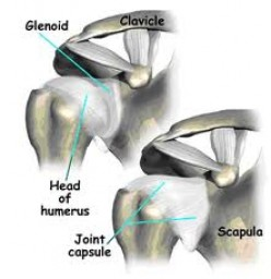 How To Prepare For Shoulder Surgery, What To Do Before And After