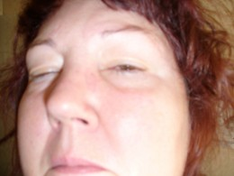 This picture was taken after one day of treatment using anti-bacterial eye drops.