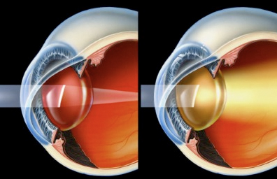 Left: A healthy eye. The lens is clear, and therefore light is crisply focused at the back of the eye. Right: An cataract-afflicted eye. The lens is cloudy, and therefore light is not properly focused and is fuzzy at the back of the eye. Art © SFG.