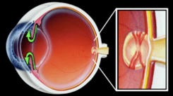A normal eye, illustrating the delicate optic nerve at the back of the eye