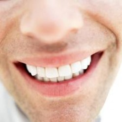 5 Natural Ways To Treat , Avoid and Remove Teeth Stains