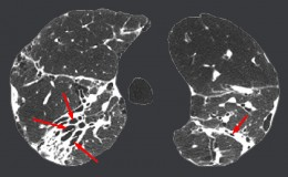 High resolution CT scan of the lung. The red arrow shows the area of bronchiectasis.