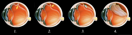 1. Liquified vitreous pulls down on the retina. 2. The retina tears from the back wall of the eye. 3. Fluid enters this cavity between the retina and the back wall of the eye. 4. The pressure created by this fluid pulls on the retina, detaching it.