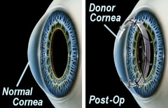 Left: A normal, healthy cornea. Right: An eye with a donated cornea transplant (notice the sutures). The previously damaged cornea has been removed, and a healthy donor cornea has been transplanted. (©SFG)