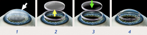 1. The normally clear cornea has become damaged and cannot focus light 2. The damaged cornea is excised and removed. 3. A healthy, clear donor cornea is transplanted. 4. Sutures, which will later dissolve, are used to hold the cornea in place. (©SFG)