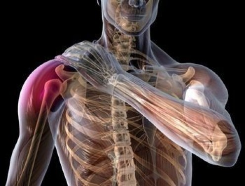 Rotator Cuff Tendinitis Exercises to Relieve Shoulder Pain