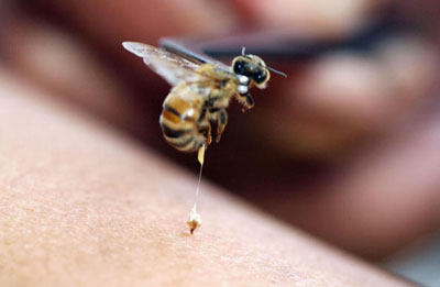 What do you know about natural home remedies for insect bites and stings