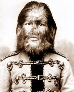 Fedor Jeftichew a Barnum circus performer in the 1800s was inflicted with hypertrichosis.