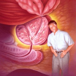 Disorder of the prostate - what is benign prostatic  hyperplasia (BPH ) ?