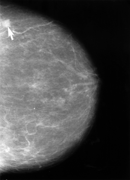 Mammograms are an important tool in diagnosing breast cancer.
