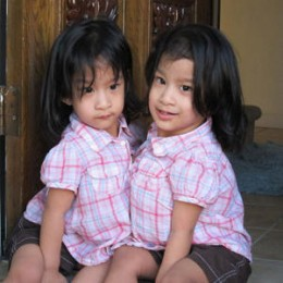 Sabuco conjoined twins Angelina (L) and Angelica before the Nov. 1 surgery