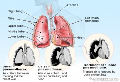 Pneumothorax or collapsed lung symptoms