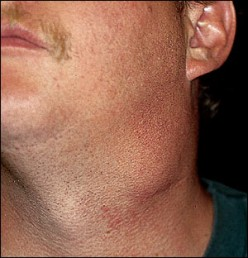 A lump/mass on the neck- Carotid body tumour
