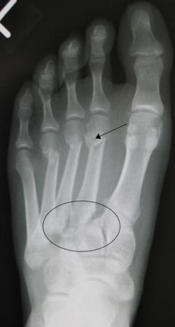 X-ray of a traumatic Lisfranc fracture.