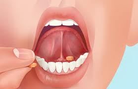 Suboxone is taking under the tongue as seen in the image. It comes in a tablet and film.