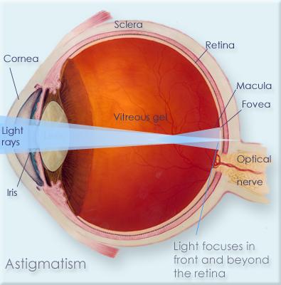 Astigmatism information