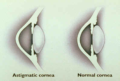 All about astigmatism