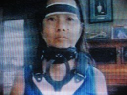 The braced face of  Ex-President Gloria Macapagal-Arroyo due to neck operation (As seen on TV-Photo by Travel Man)