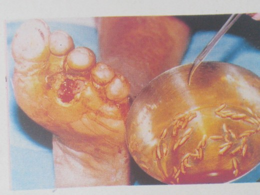 Maggots removed from ulcerated Diabetic Foot
