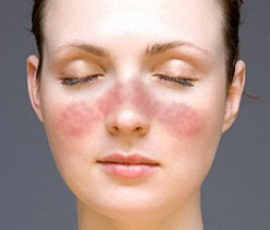 Medical symptom checker - Butterfly rash on face - Systemic lupus erythematosus
