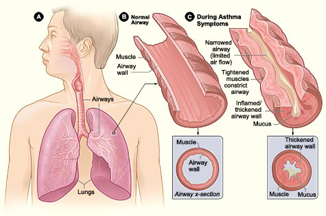 In this illustration you can see to the left what a normal airway should look like. With a disease like asthma, the airways are usually constricted or narrowed because of inflammation, which could be triggered by many factors including  environmental