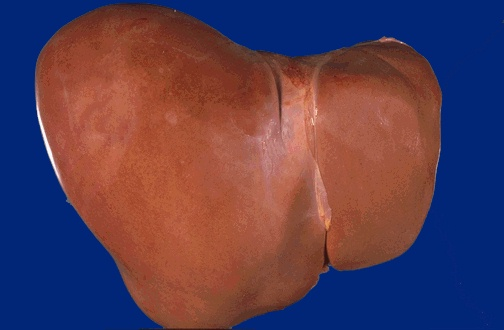 Normal liver has brown colour with a glistening smooth external surface
