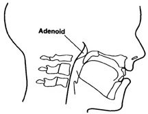 Adenoid removal together with Ear tubing may cause hypernasality.