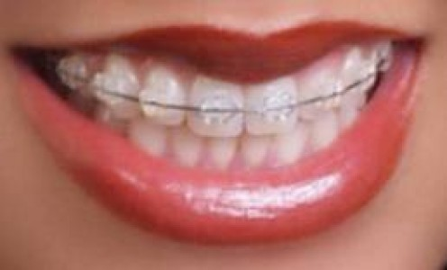 adults with braces