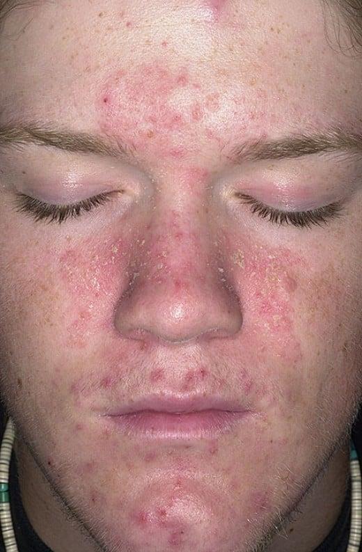 yeast infection facial rash