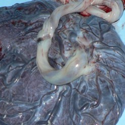 Placenta- The Third Stage of Labor