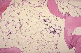 Bone marrow biopsy of patient with aplastic anemia. appear to be hypocellular, empty bone marow space