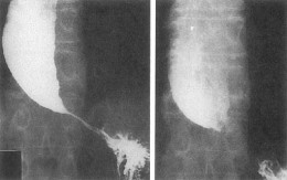 X ray shows dilated esophagus with constricted ending