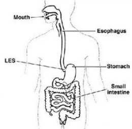 What causes Crohn's Disease?
