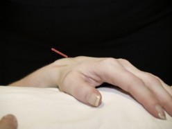 Acupuncture for Lupus Patients