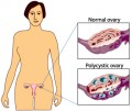 An Alternative View Of Ovarian Cysts Using Homeopathy and Brandon Bays Healing Journey