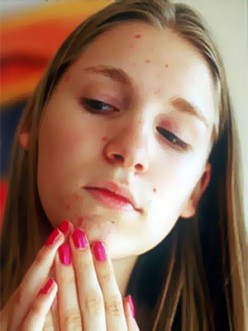 Facts About Acne - Causes, Forms, and Prevention