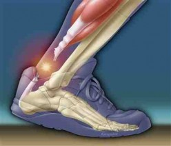 What Is Achilles Tendonitis? Prevention And Treatment