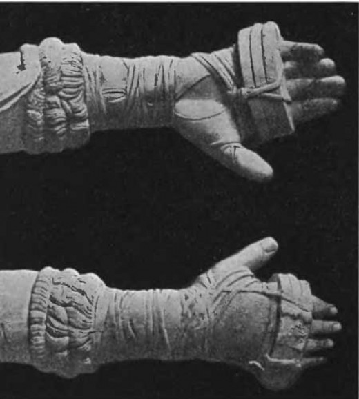 Ancient Greek boxing gloves.