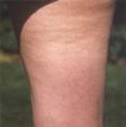 Mild Cellulite