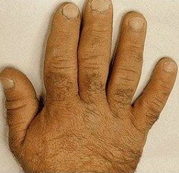 large fingers