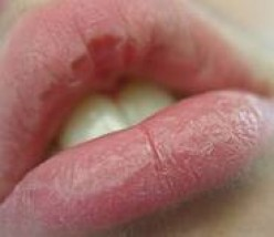 How to Get Rid of Chapped Lips with Easy Home Remedies